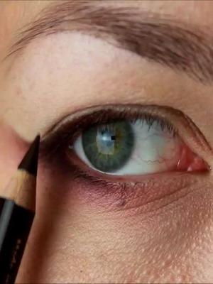 Să scapi de wen pe pleoape și sub ochi - Infecție